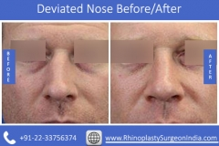 Deviated-Nose-1