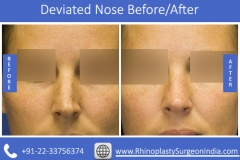 Deviated-Nose-2