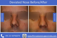 Deviated-Nose-3