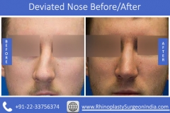Deviated-Nose-4