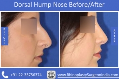 Dorsal-Hump-Nose-2