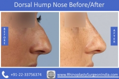 Dorsal-Hump-Nose-1