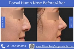 Dorsal-Hump-Nose-3
