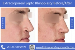 Extracorporeal-Septo-Rhinoplasty-1
