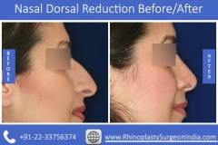 Nasal-Dorsal-Reduction-3