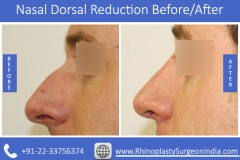 Nasal-Dorsal-Reduction-4