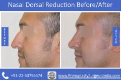 Nasal-Dorsal-Reduction-1