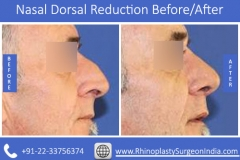 Nasal-Dorsal-Reduction-2