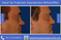 Nasal-Tip-Projection-Deprojection-1