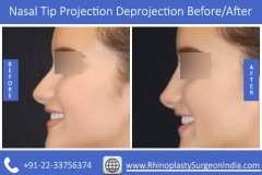 Nasal-Tip-Projection-Deprojection-2
