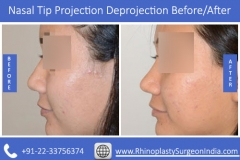 Nasal-Tip-Projection-Deprojection-3