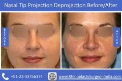 Nasal-Tip-Projection-Deprojection-4