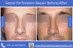 Septal-Perforation-Repair-4